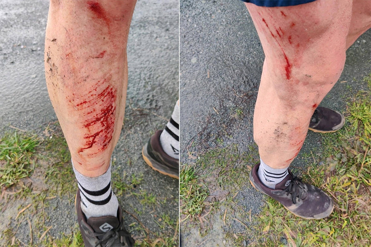 Injuries sustained by professional runner Gary Robbins after a pickup driver intentionally nearly hit him on a rural Chilliwack road on Dec. 9, 2020. (Gary Robbins photo)